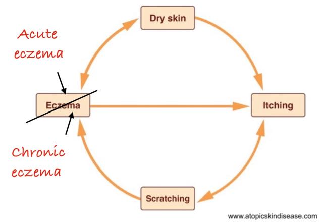 understanding-the-vicious-circle-chronic-eczema
