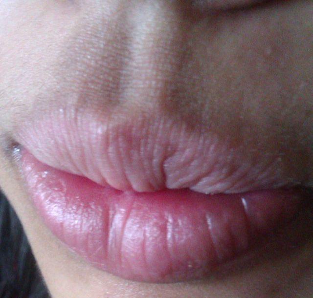 lip-eczema