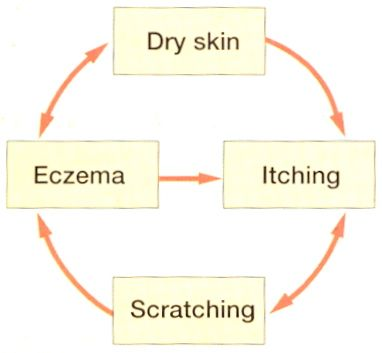 dry skin with atopy makes acute flare-up eczema more likely  both dry skin  and acute eczema are itchy  itch leads to scratching